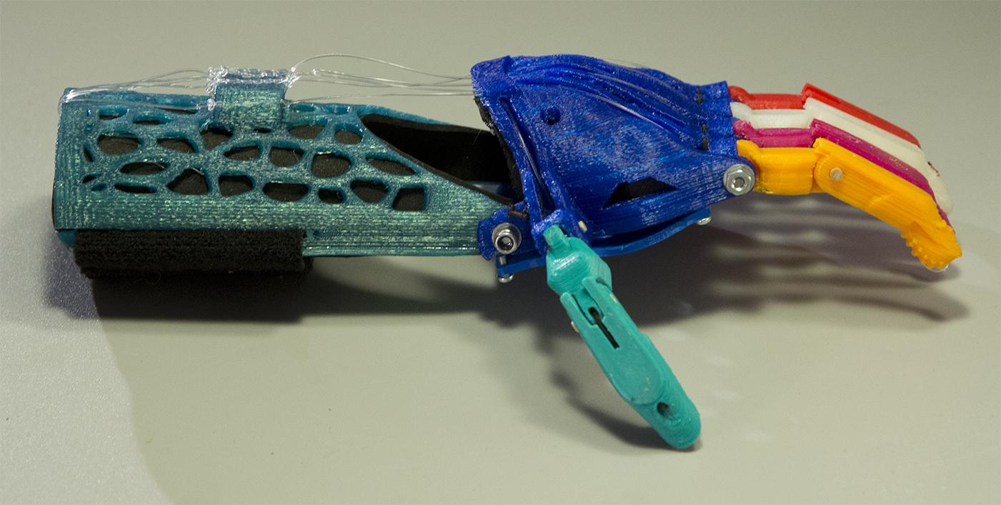 prótesis de mano mecánica