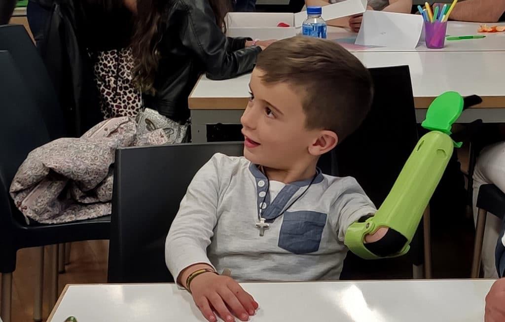 Niño con una prótesis de brazo